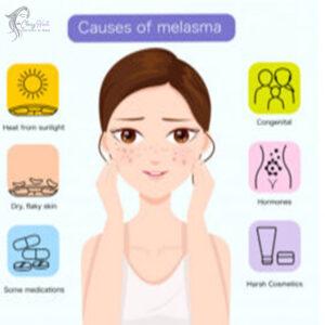 Causes-of-melasma
