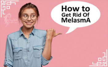 How to get rid of melasma naturally at home | Best 2021